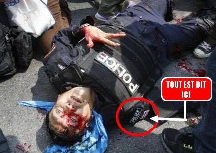 POLICIER FRANCAIS BLESSE--