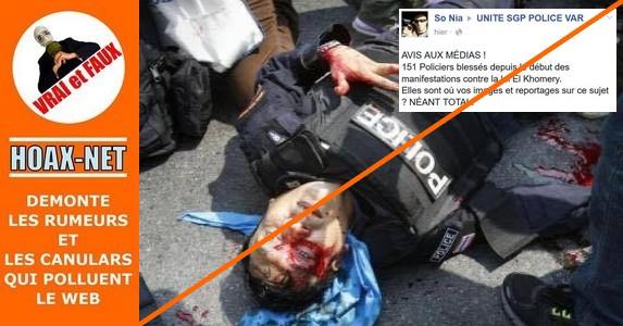 Ce policier blessé n'est pas Français !