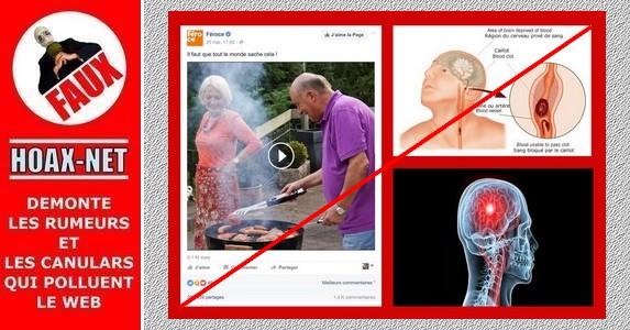 Reconnaître un AVC ou les conseils farfelus des pseudo-médecins sur Facebook.