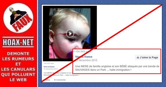 Non, les blessures de ce bébé ne sont pas dues à l'agression de sa maman par des immigrés !
