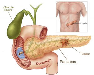 cancer-pancreas