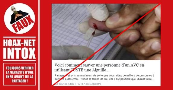 Voici comment NE PAS sauver une personne victime d'un AVC en utilisant JUSTE une aiguille !!!
