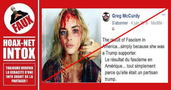 Non, cette femme n'a pas été tabassée pour son soutien à Donald TRUMP en 2016