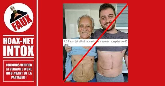 Non, cet homme de 80 ans n'a pas reçu une greffe de rein de son fils