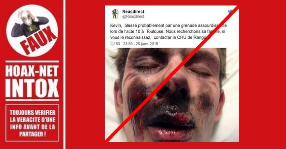 Non, il n'a pas reçu de grenade dans le visage à Toulouse
