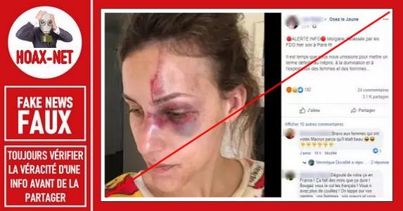Non, il ne s'agit pas d'une violence policière commise sur cette jeune femme.