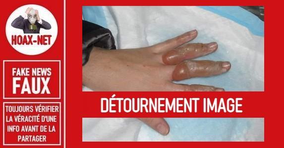 Non, ce n'est pas une photo d'une main brulée avec du gel désinfectant dans un four